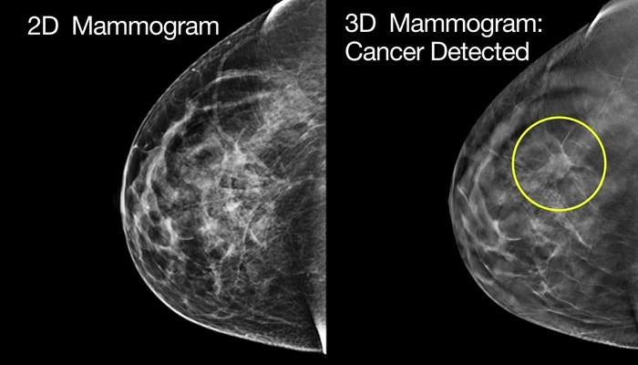 ماموگرافی چیست؟